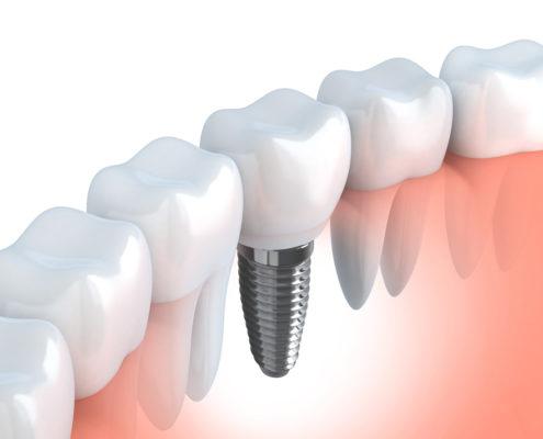 Dental Implants at Dentistry on Merivale